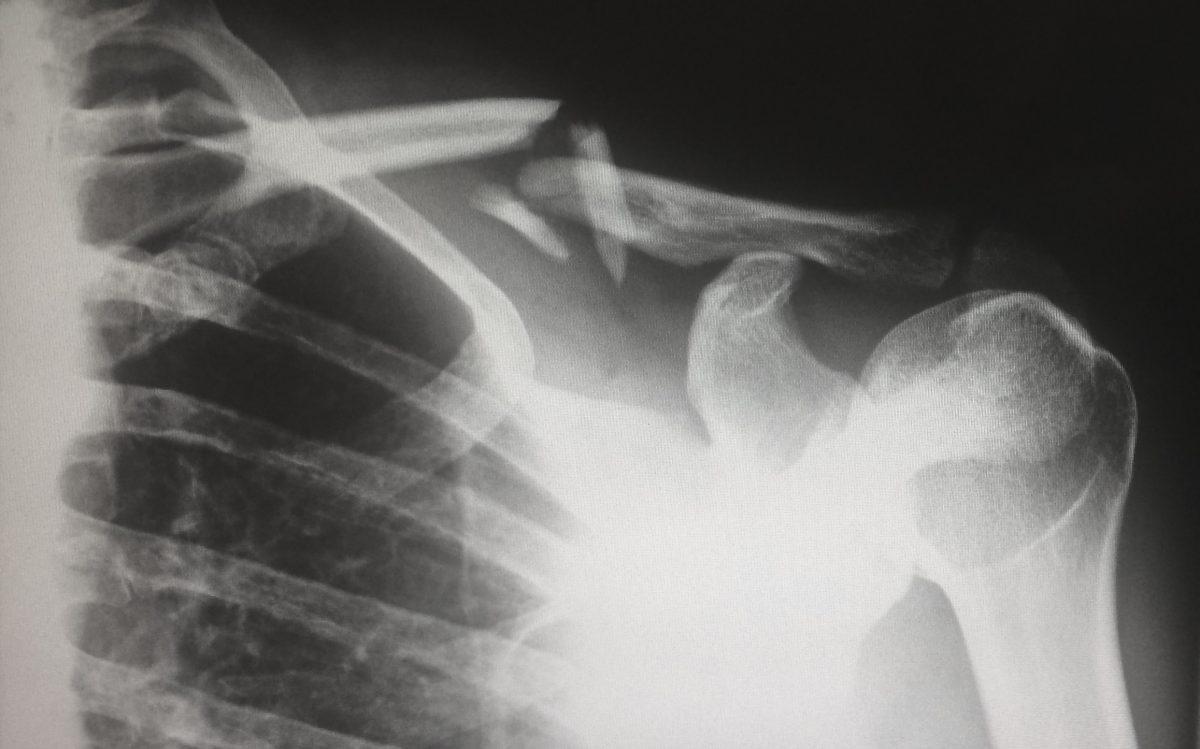 Osha Recordable Broken Bone 1